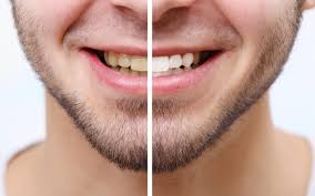 Snowhite Teeth Whitening– أجهزة لوحية – يشترى – منتدى
