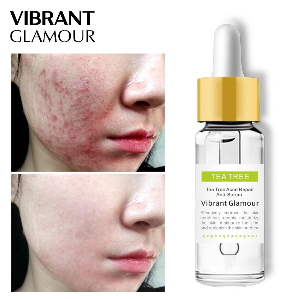 Facial Serum Anti Acne -المكونات -منتدى - Amazon